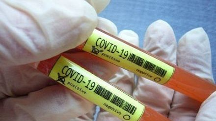 Coronavirus outbreak in UP: वाराणसी में सात नये मामले सामने आये, अस्पताल का कैब चालक कोरोना वायरस से संक्रमित