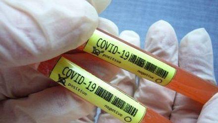 Covid-19: कोरोनावायरस के ये हैं सामान्य और गंभीर लक्षण, आप भी जानिए...