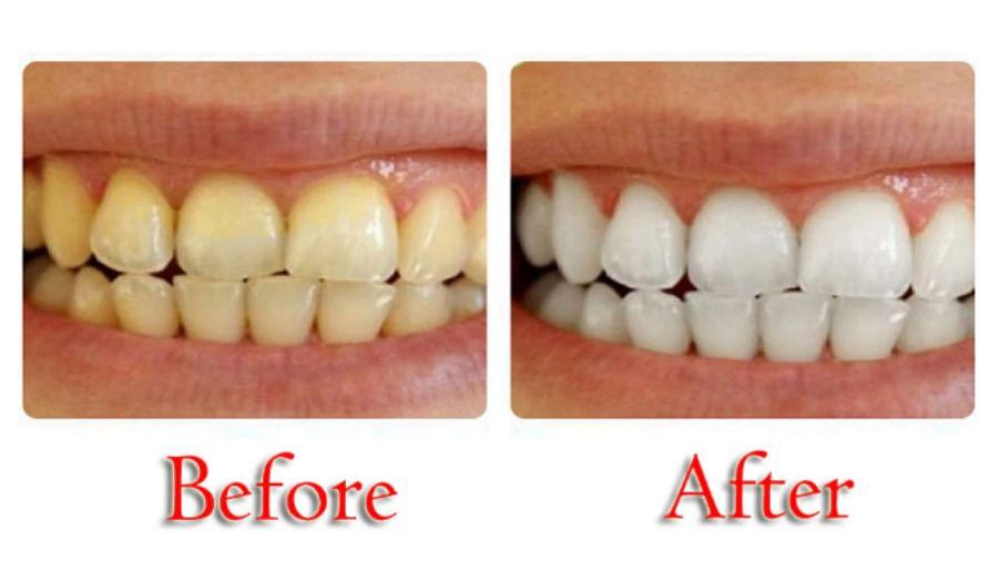 Teeth Whitening Home Remedy In Hindi