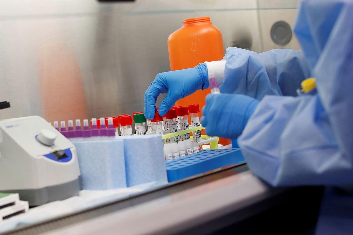 30 नये संक्रमित, रिम्स में मृत मजदूर भी पॉजिटिव निकला