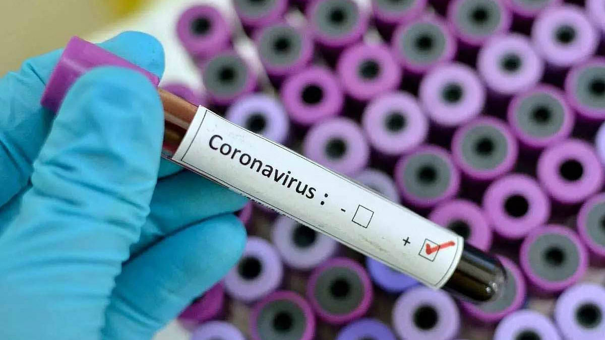 Covid 19: घर बैठे फ्री में यूं करें कोरोना टेस्ट
