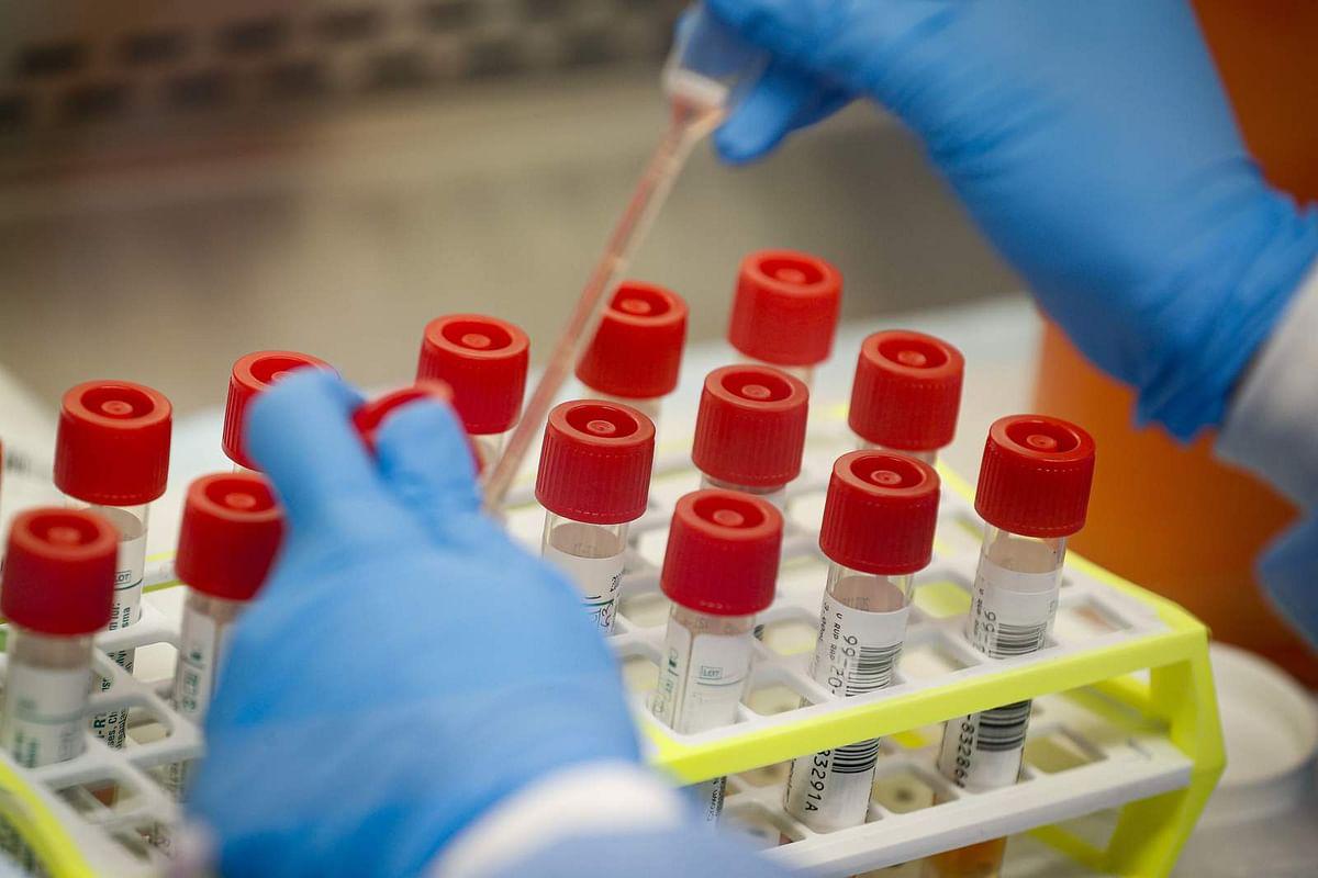 झारखंड में कोरोना से चौथी मौत, आये 20 नये पॉजिटिव मामले, संक्रमितों की संख्या 350 हुई