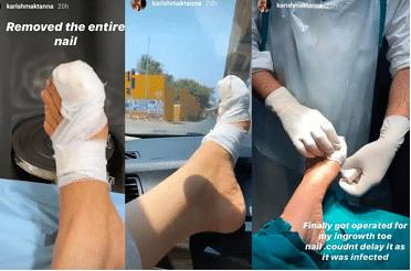अभिनेत्री करिश्मा तन्ना ने इसकी जानकारी इंस्टाग्राम स्टोरी पर दी. इसके अलावा उन्होंने एक वीडियो शेयर किया था, जिसमें डॉक्टर उनके पैर पर पट्टी बांध रहा है. वीडियो के कैप्शन में अभिनेत्री ने लिखा, 'आखिरकार मेरे पैर की अंगुली के इनग्रोन नाखून का ऑपरेशन किया गया. संक्रमित होने के कारण इसमें देरी नहीं हो सकती थी'.