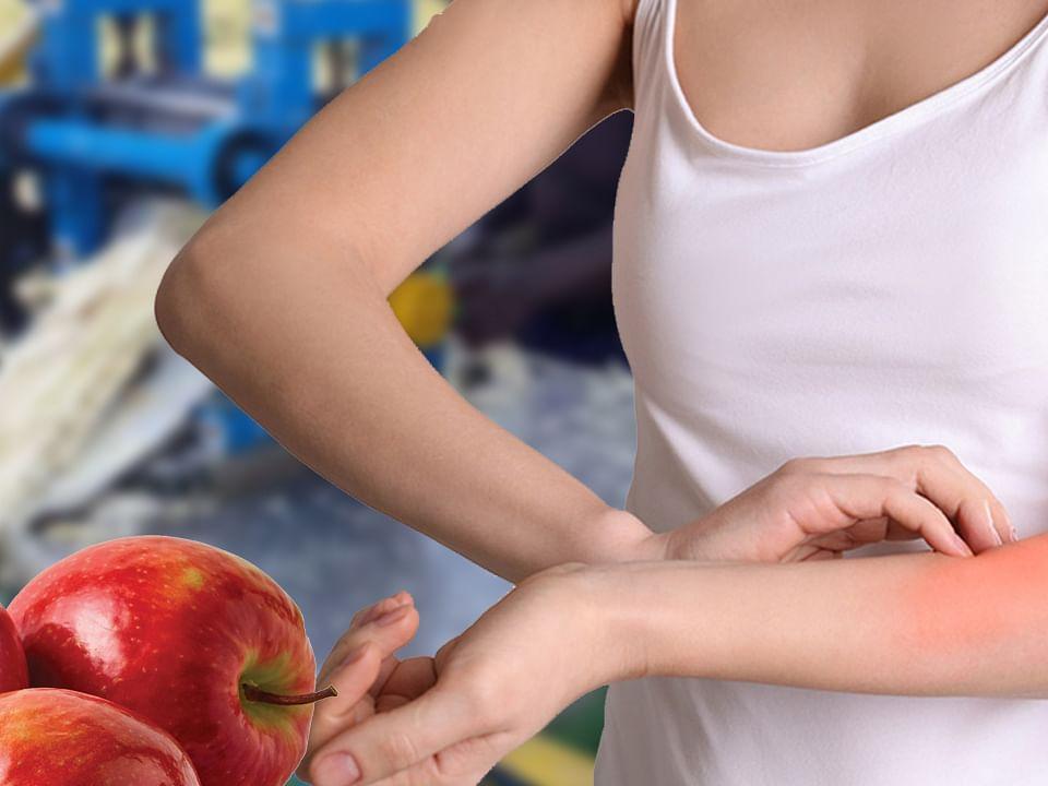 Winter Season Skin Care Tips: Moisturizer गुणों से भरपूर इन फूड एंड ड्रिंक्स का करें सेवन और सर्दी में Dry Skin की खुजली और Rashes से पाएं छूटकारा