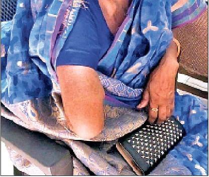 पैर के ऑपरेशन के लिए अस्पताल में गयी थी महिला, डॉक्टर को काटना पड़ा हाथ, जानिये क्या है मामला