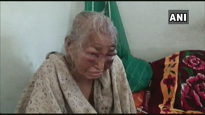 Bengal Chunav 2021 : TMC समर्थकों ने BJP कार्यकर्ता की मां को बुरी तरह पीटा! बोलीं शाजिया इल्मी -मां जी हम शर्मिंदा...
