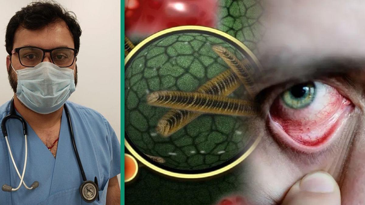 Black Fungus: क्या है ब्लैक फंगस के लक्षण, कैसे कोरोना मरीजों को हो रही ये बीमारी, जानें बचाव के उपाय एक्सपर्ट से