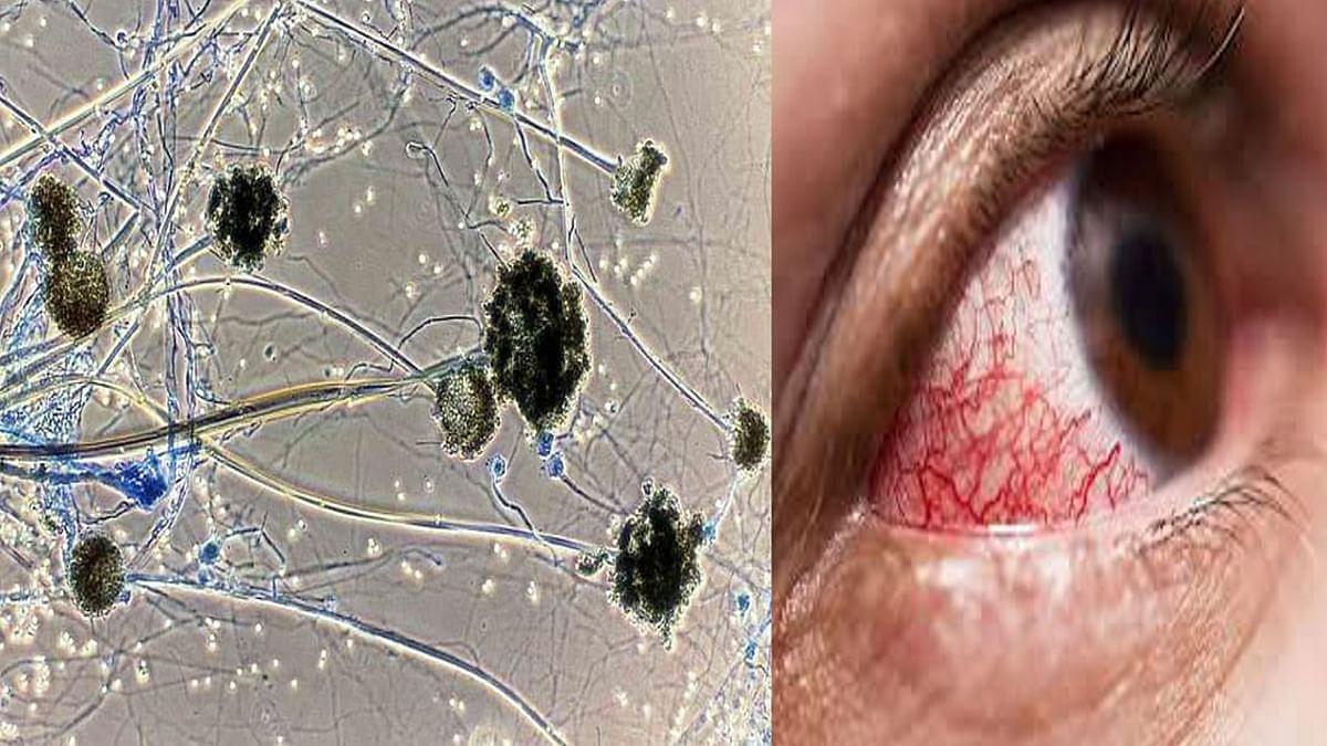 Black Fungus Update News : झारखंड में ब्लैक फंगस होगी महामारी घोषित, CM हेमंत ने दिये निर्देश