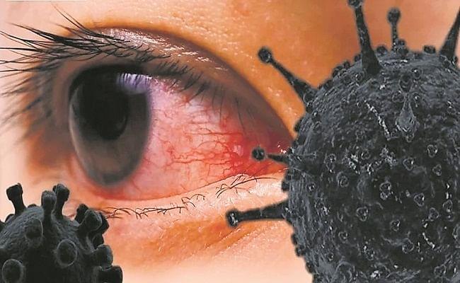 झारखंड में तेजी से ठीक हो रहे हैं ब्लैक फंगस के मरीज, रिकवरी रेट 66 फीसदी, जानें एक्टिव केस