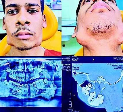 पटना में डाक्टरों ने किया अनोखा ऑपरेशन, 17 साल के लड़के के जबड़े से निकाले 82 दांत