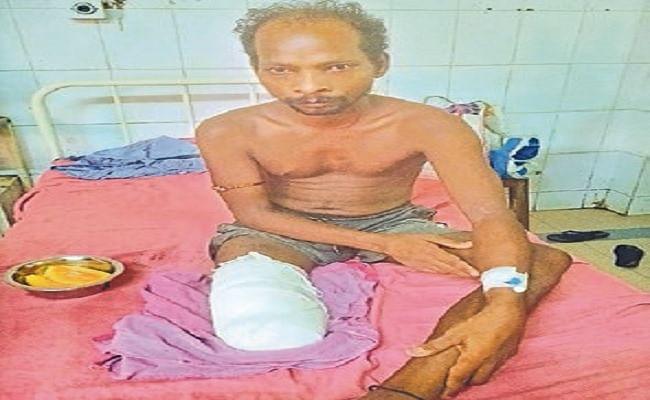 दलालों के चक्कर में युवक का कटा पैर, JLNMCH से आयुष्मान अस्पताल आना पड़ा महंगा