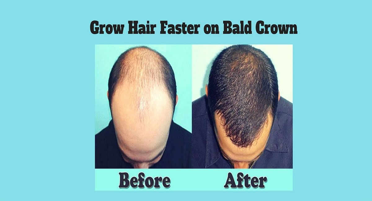 How to get rid of Baldness, Treatment of hair problem