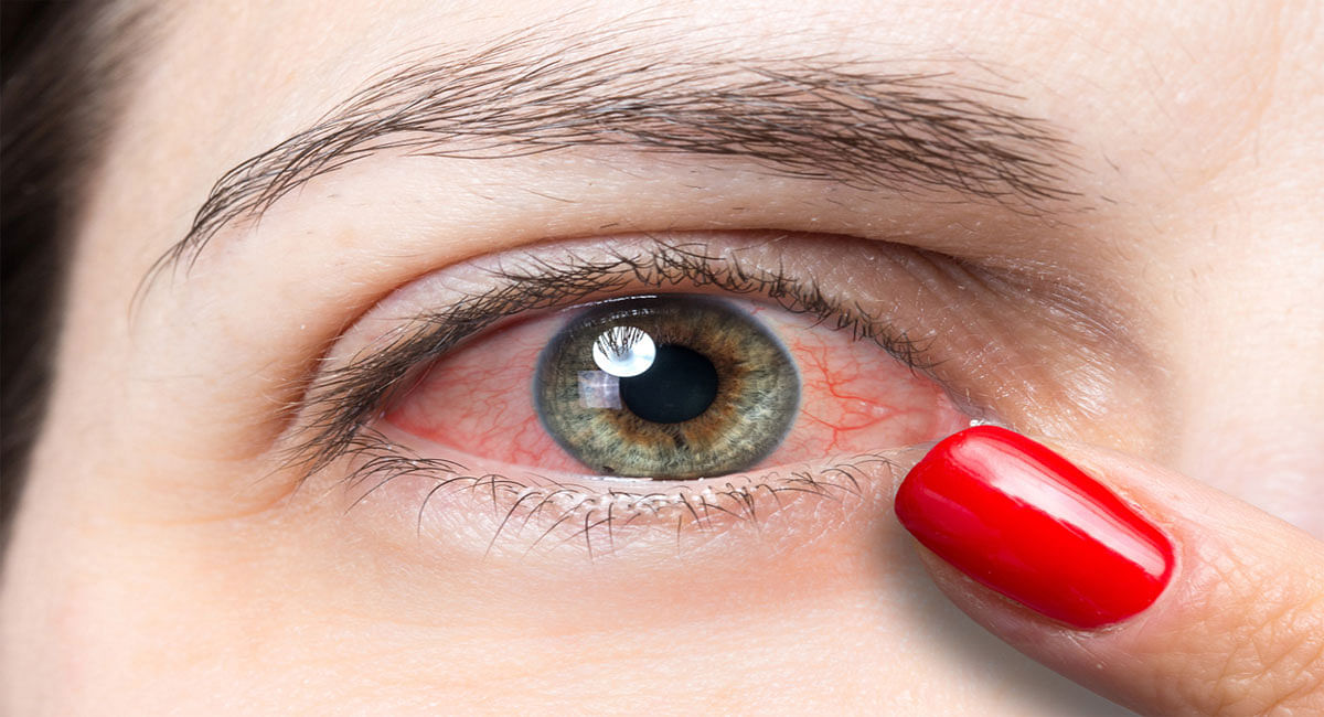 Conjunctivitis Symptoms: How to protect eyes from infection