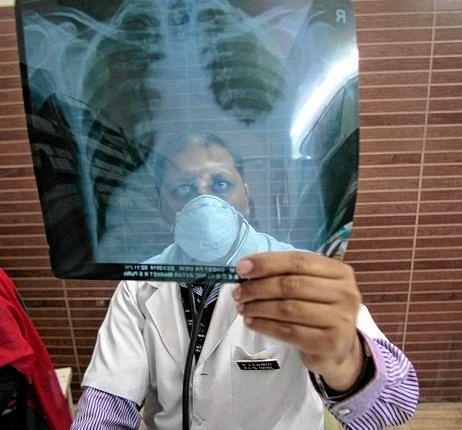 Jharkhand News : झारखंड में टीबी के मरीजों की तलाश शुरू, रांची में 20 अक्टूबर तक चलेगा अभियान