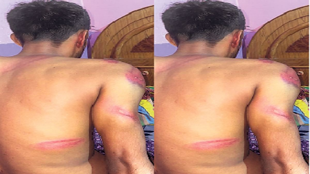 Bihar News: रेस्टोरेंट में केक काटने के लिए टेबल मांगा तो बर्थडे ब्वॉय व दोस्त को पीटा, होटल मालिक गिरफ्तार