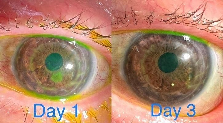 visible difference in eyes day by day