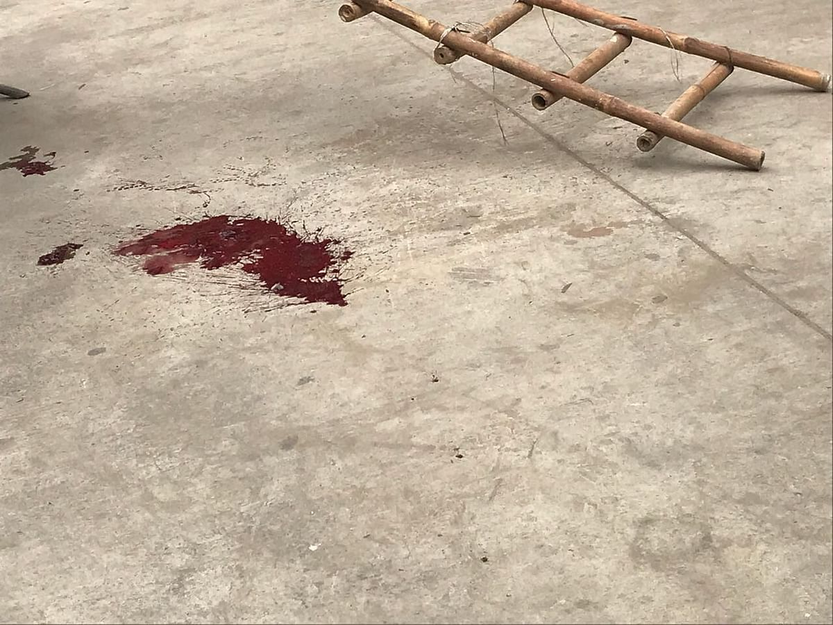 Accused shot at by juvenile assailants at Rohini court premises