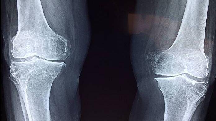 Osteoporosis: எலும்புகளின் ஆரோக்கியத்துக்கு இந்த உணவுகளை கட்டாயம் சாப்பிடுங்கள்!