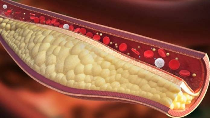 Cholesterol Home Remedies: கொலஸ்ட்ராலை கரைக்க உதவும் உணவுகள்!