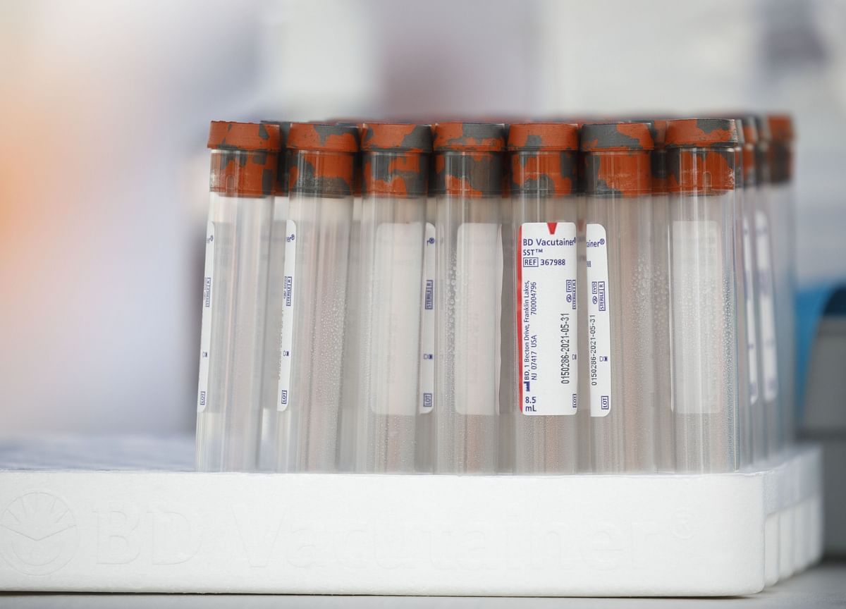 'Game Changing' 15-Minute Covid-19 Test Cleared in Europe