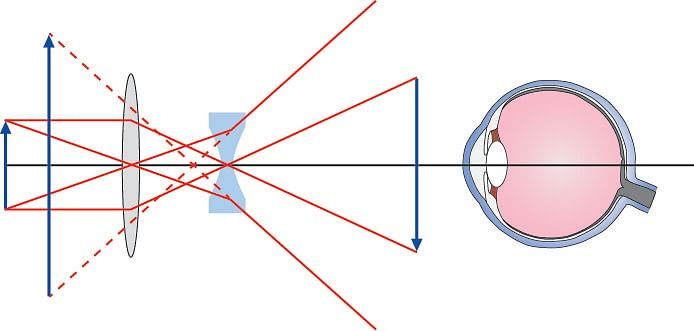 Figure 9. Ray diagram for a telescope using a mixture of converging and diverging  lenses.