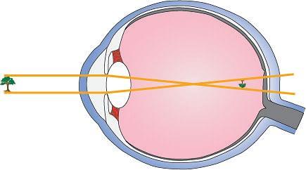 Figure 6. Nearsightedness