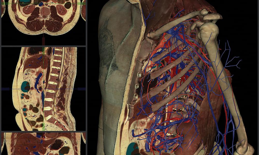Webinar: Take Your Anatomy Labs Online