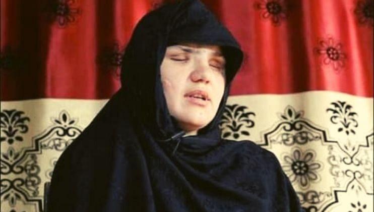 'तालिबान्यांनी माझे अपहरण करुन, डोळे काढले'; अफगाण महिलेने मांडली करुन कहाणी