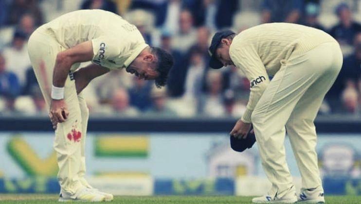 ENG vs IND: रक्ताने जखमी तरीही तो मैदानावर,जेम्स अँडरसनची अनोखी खेळाडू वृत्ती