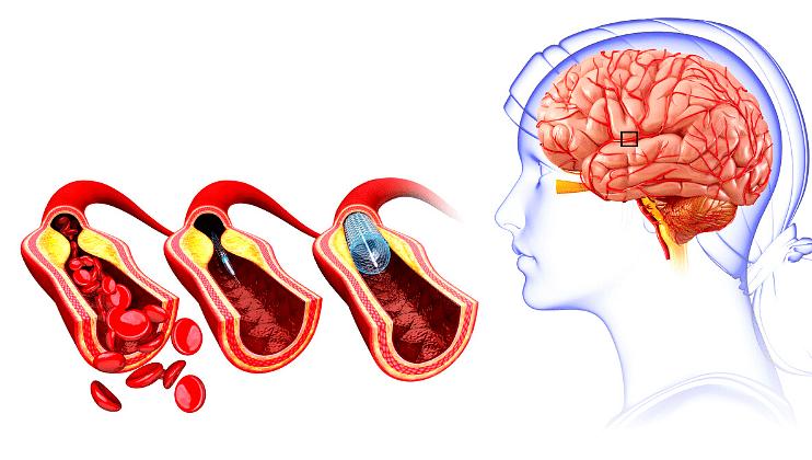Reason Of  Brain  stroke