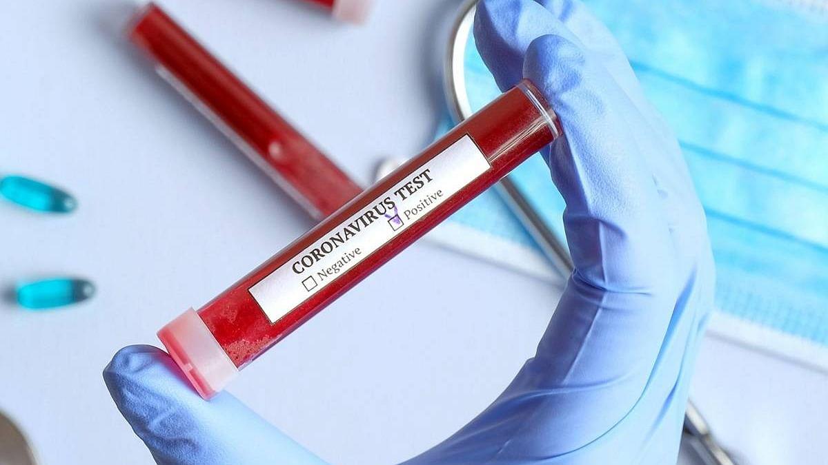 नेवासा तालुक्यातील 21 गावांतून आढळले 40 संक्रमित