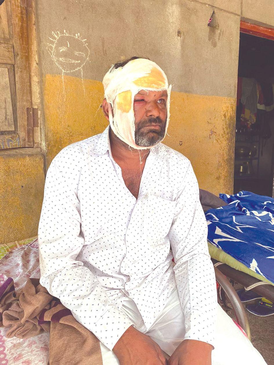 खोसपुरीला बिबट्याच्या हल्ल्यात शेतकरी जखमी; चार शेळ्या फस्त