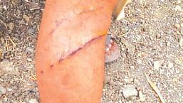 केशव गोविंद बनासमोर बिबट्याच्या हल्ल्यात शेतकरी जखमी