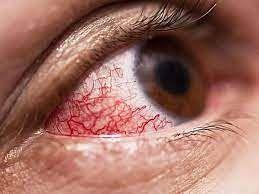 म्युकरमायकोसीस उपचाराचे दर निश्चित