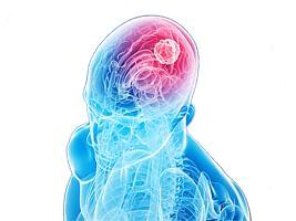 आरोग्यदूत : कॅन्सर मेंदूचा