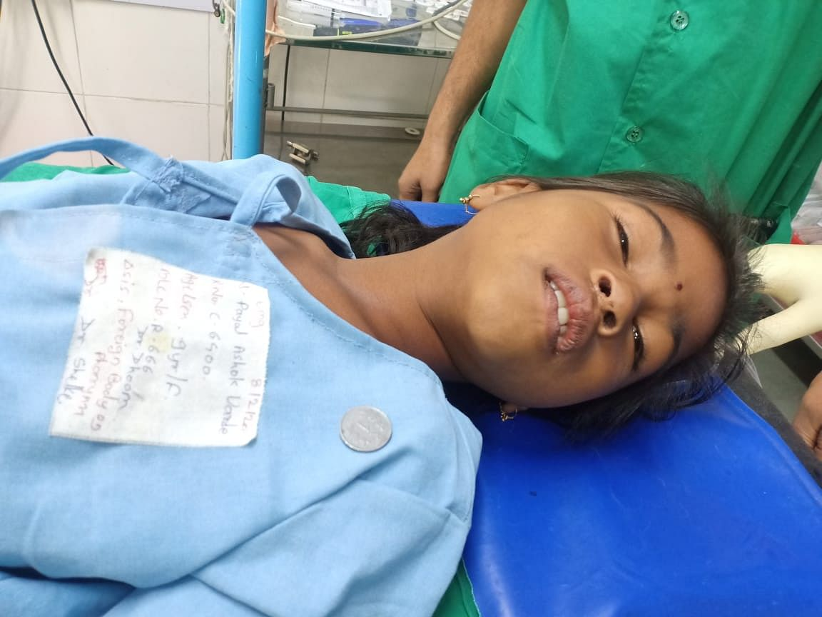 Girl saved by civil hospital after coin got stuck in food pipe