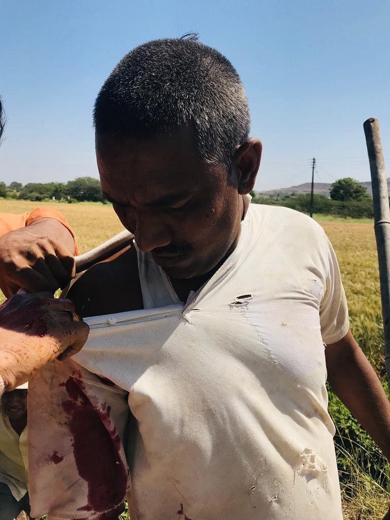 सिन्नर : विंचूर दळवी येथे बिबट्याचा हल्ल्यात शेतकरी जखमी