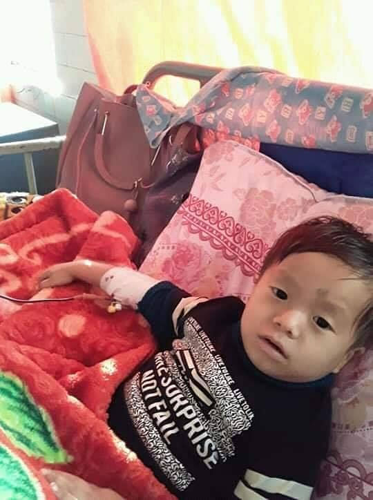 Three-year-old Ingso Subba, who was admitted to the Darjeeling District Hospital on Tuesday. Subba suffers from a rare genetic blood disorder called 'Diamond-Blackfan Syndrome', a type of anaemia