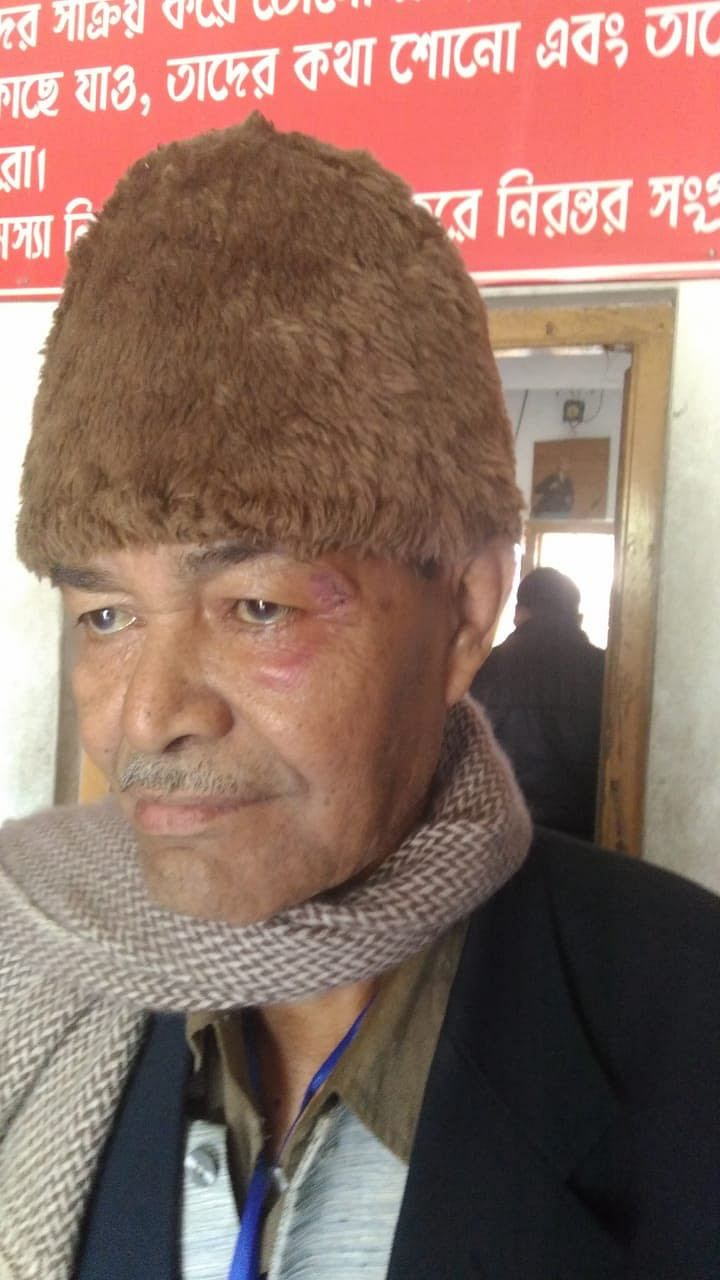 Former Tripura finance minister Bhanu lal Saha, who was attacked by miscreants on the day of civic by-polls in Bishalgarh town of Sepahijala district on December 27