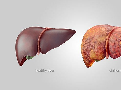 No! The first signs of alcoholic liver damage are not in the liver