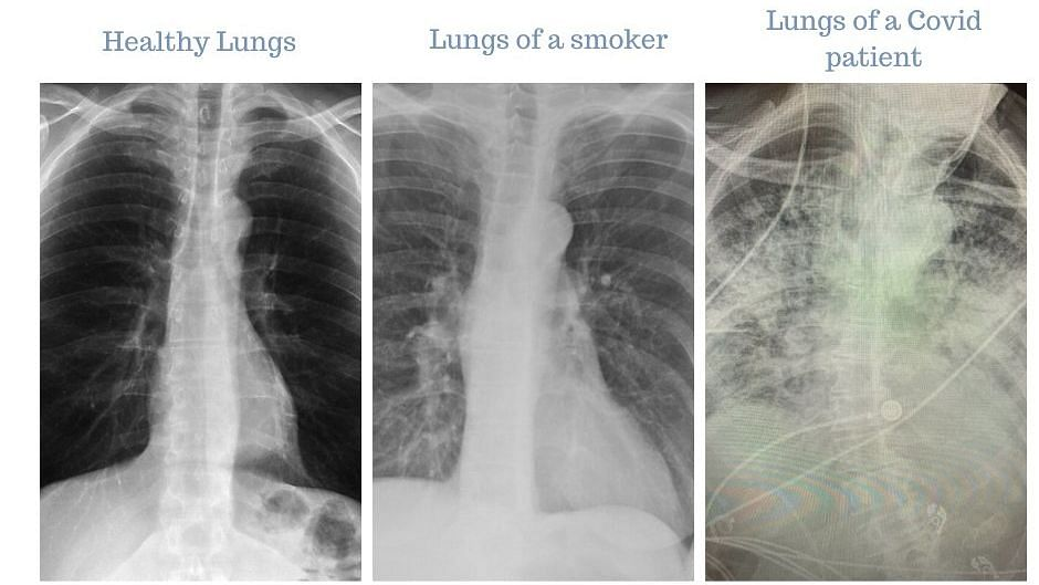 Post-COVID-19 lungs look worse than smokers' lungs