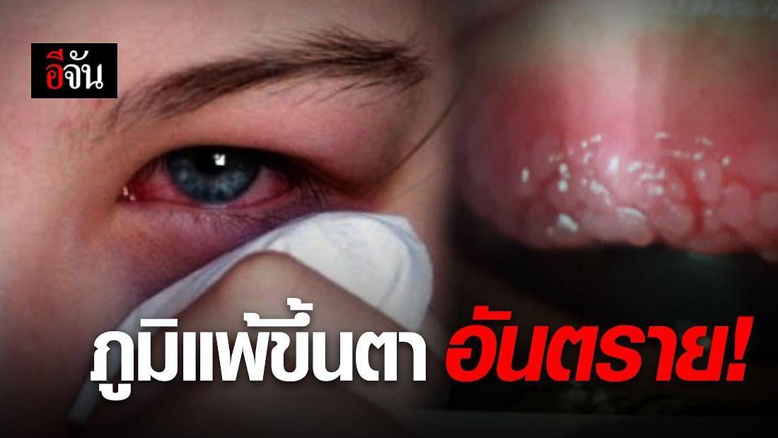 เคืองตา คันตา อย่าปล่อยไว้นาน โรคภูมแพ้ขึ้นตา อันตราย