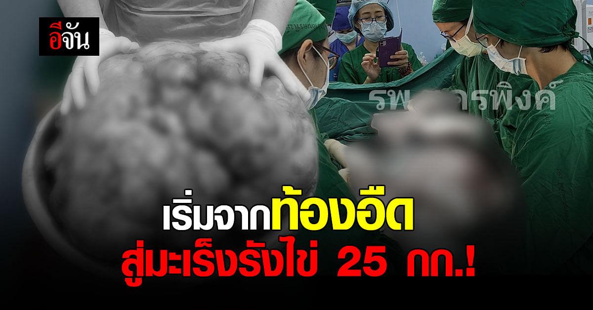 โรงพยาบาลนครพิงค์ ผ่าตัด มะเร็งรังไข่ น้ำหนักกว่า 25 กิโลกรัม!