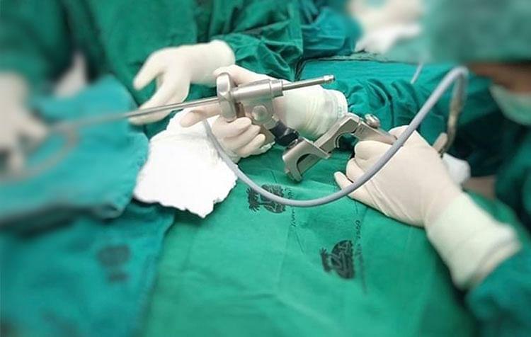 ผ่าตัดเอาเปลือกกุ้งออกจากหลอดลม