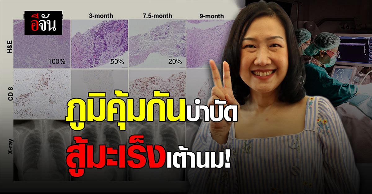 ชีวิตใหม่! คนแรกของโลก ภูมิคุ้มกันบำบัด รักษามะเร็งเต้านม ได้สำเร็จ