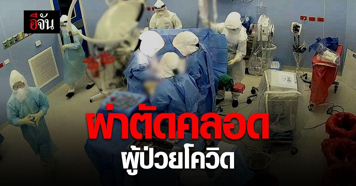 รพ.นครพิงค์ ผ่าตัดคลอดผู้ป่วยโควิด ปลอดภัยทั้งแม่และลูก