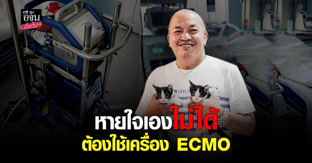 น้าค่อม ทรุดหนักต้องย้าย รพ. พึ่งเครื่อง ECMO เพราะเริ่มหายใจเองไม่ได้