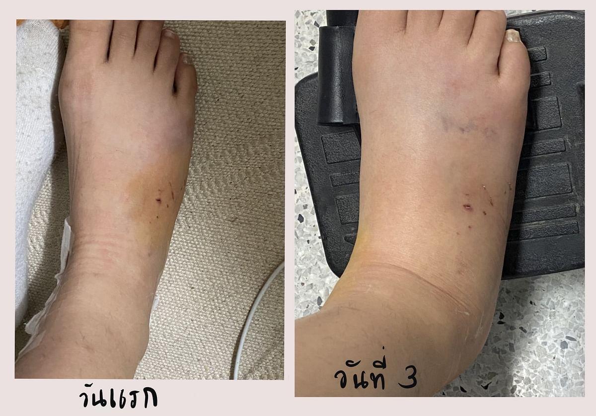 เข้าวันที่ 2 ช่วงดึกๆ เท้าเริ่มบวม วันที่ 3 เท้าบวมมาก เดินไม่ค่อยได้ จึงเดินทางไปโรงพยาบาล