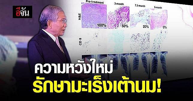 ครั้งแรกในโลก! ไทยทำสำเร็จ ภูมิคุ้มกันบำบัด รักษามะเร็งเต้านม