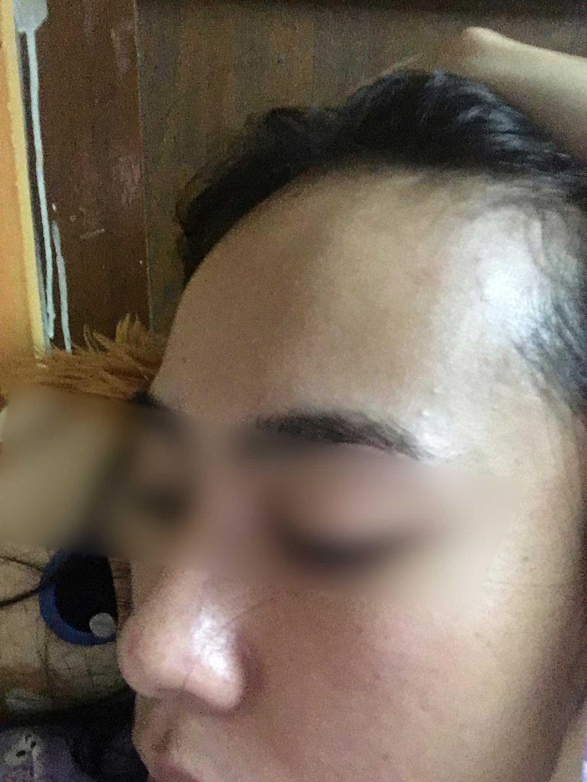 เบื้องต้น มีอาการหัวโน แก้มบวม ปวดจมูก มีรอยขีดข่วนที่ใบหน้า
